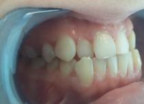 Пациентка обратилась с жалобами на неровные зубы.Фото - до лечения
