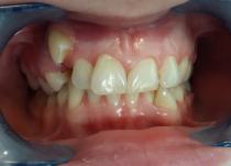 Пациента обратилась с жалобами на неровные зубы. После диагностики была направлена на удаление первого премоляра на верхней челюсти.Фото - до начала лечения