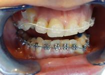 Установлены сапфировые лигатурные  брекеты Radiance .018 паз на верхнюю челюсть и металлические лигатурные брекеты МТХ .018 паз на нижнюю челюсть(через месяц после установки верхней).