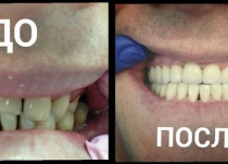 До и после ортопедического лечения