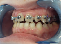 На фото - прошло 3 месяца от начала лечения. Установлены лигатурные металлические  брекеты Magnum .018 паз