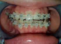 Установлена самолигирующая брекет система Empower Clear .022 паз на верхнюю и нижнюю челюсть.Фото - через 3 месяца после лечения