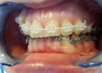 Установлены сапфировые лигатурные  брекеты Radiance .018 паз на верхнюю челюсть и металлические лигатурные брекеты МТХ .018 паз на нижнюю челюсть(через месяц после установки верхней).Фото- через 2 месяца от начала лечения