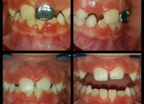 Случай лечения обратной окклюзии 21 зуба с помощью ортодонтической коронки Катца в течении 2х месяцев. Прошло выравнивание и 21 зуба и 31 зуба. Гиперемия десневого края в области 21 и 31 зуба пройдет в течении 3-5 дней